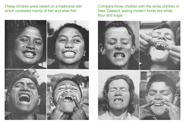tooth-decay-pictures-photo
